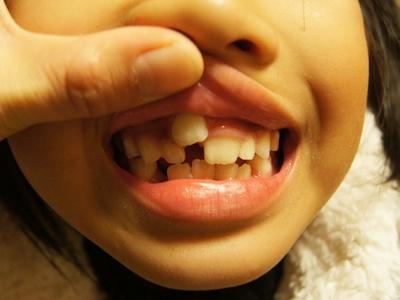子供 乳歯 永久歯