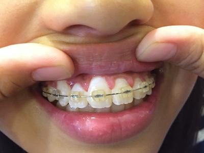 子供 歯 歯科矯正